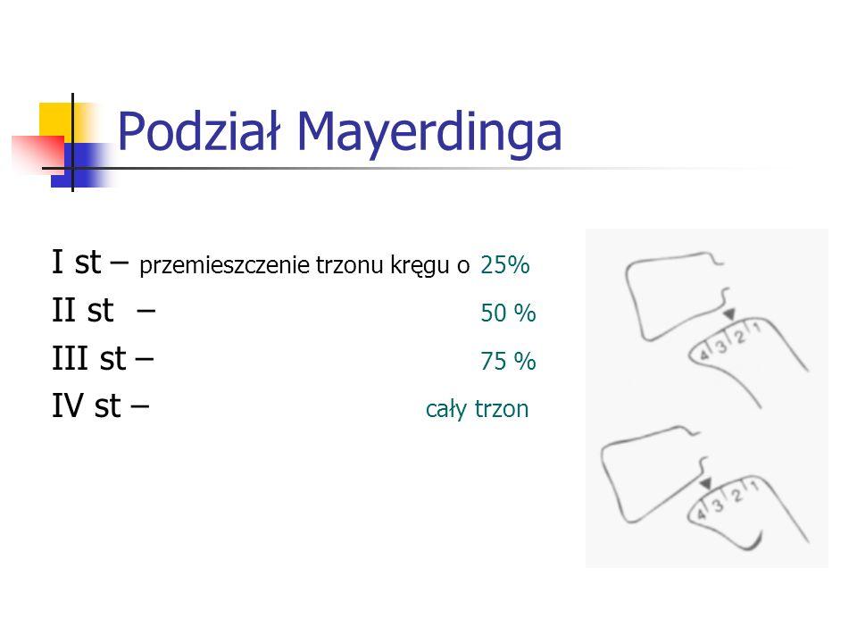 Podział Mayerdinga I st – przemieszczenie trzonu kręgu o 25%