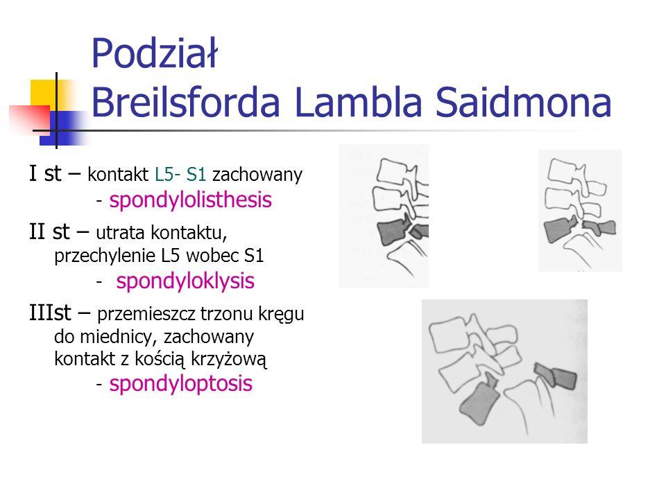 Podział Breilsforda Lambla Saidmona