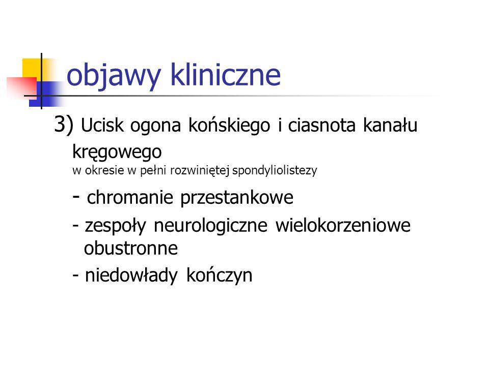 objawy kliniczne 3) Ucisk ogona końskiego i ciasnota kanału kręgowego w okresie w pełni rozwiniętej spondyliolistezy.
