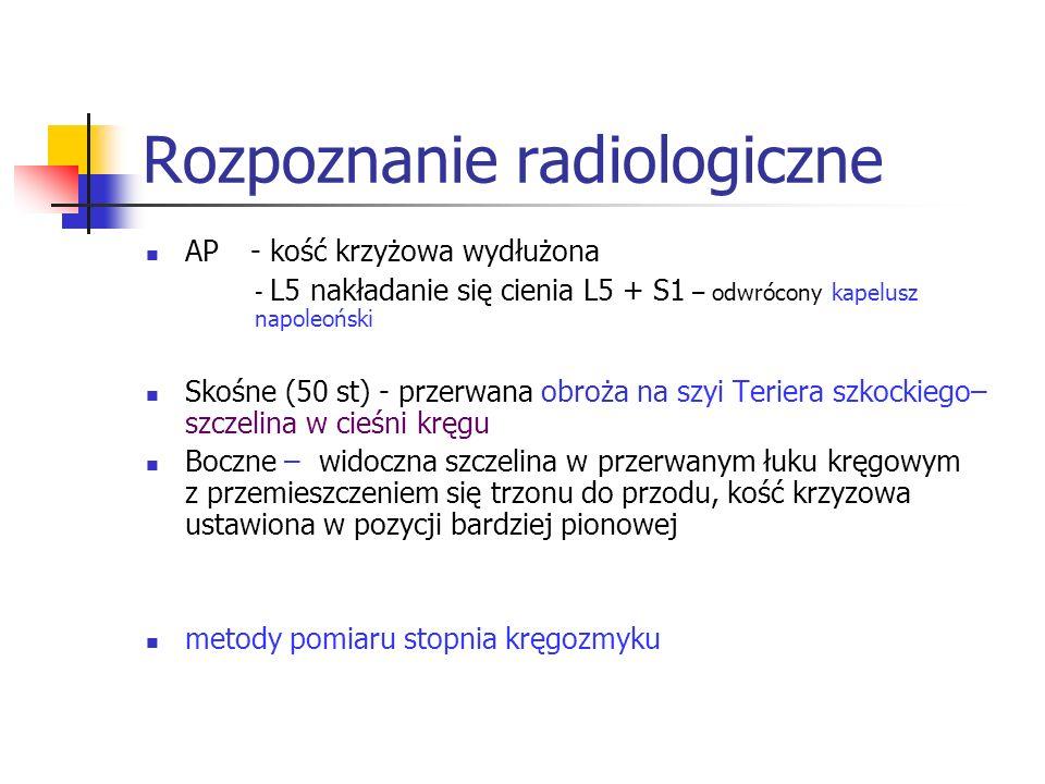 Rozpoznanie radiologiczne