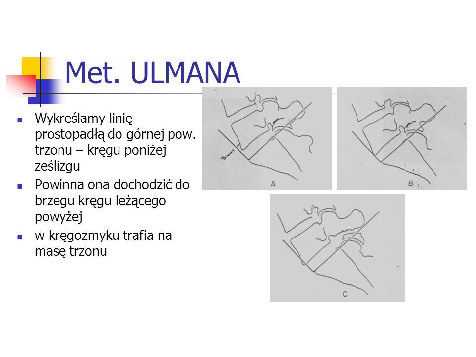 Met. ULMANAWykreślamy linię prostopadłą do górnej pow. trzonu – kręgu poniżej ześlizgu. Powinna ona dochodzić do brzegu kręgu leżącego powyżej.