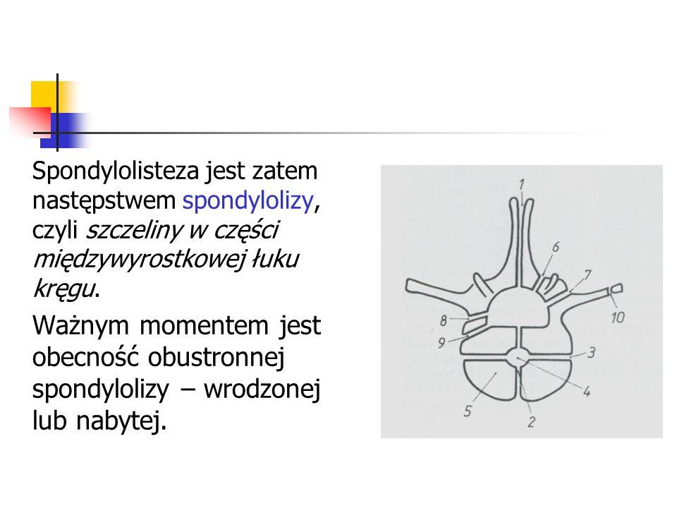Spondylolisteza jest zatem następstwem spondylolizy, czyli szczeliny w części międzywyrostkowej łuku kręgu.