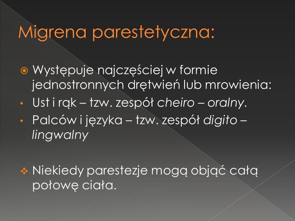 Migrena parestetyczna: