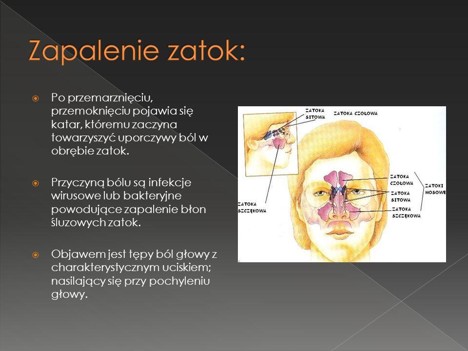 Zapalenie zatok: Po przemarznięciu, przemoknięciu pojawia się katar, któremu zaczyna towarzyszyć uporczywy ból w obrębie zatok.
