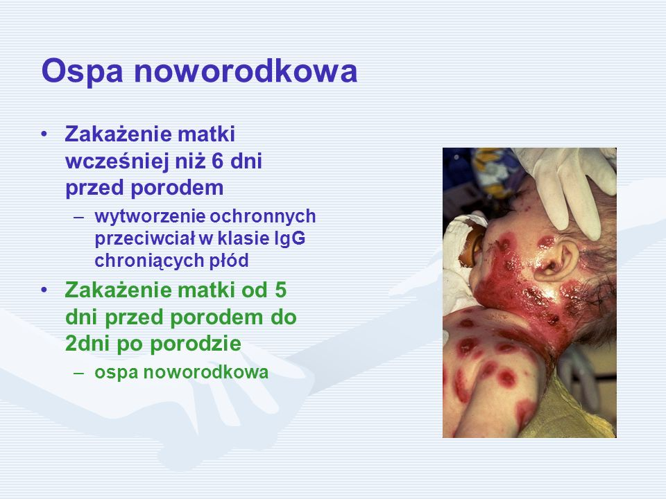 Ospa noworodkowa Zakażenie matki wcześniej niż 6 dni przed porodem