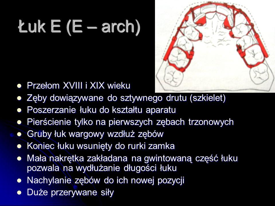 Łuk E (E – arch) Przełom XVIII i XIX wieku