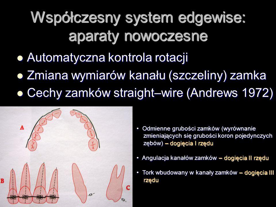 Współczesny system edgewise: aparaty nowoczesne