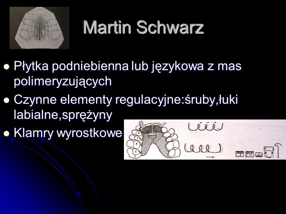 Martin Schwarz Płytka podniebienna lub językowa z mas polimeryzujących