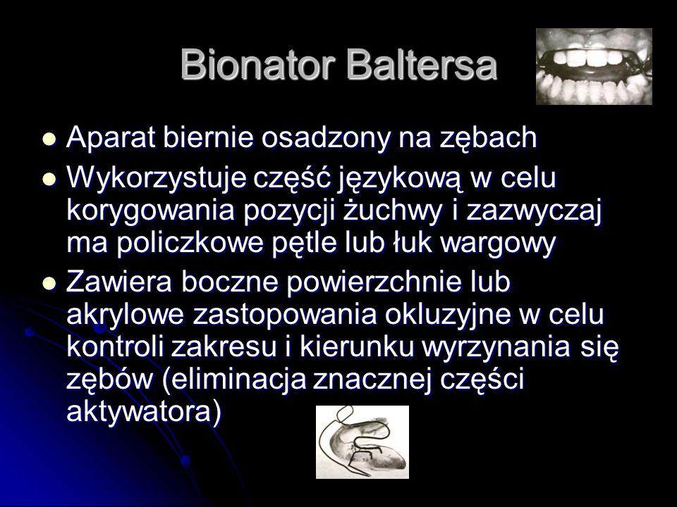 Bionator Baltersa Aparat biernie osadzony na zębach