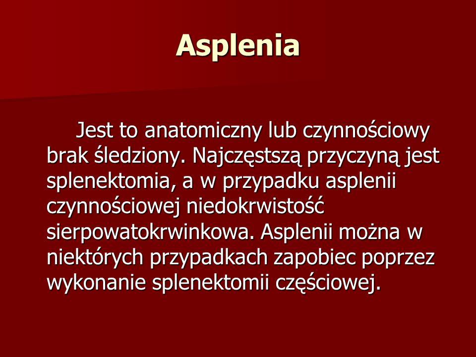 Asplenia