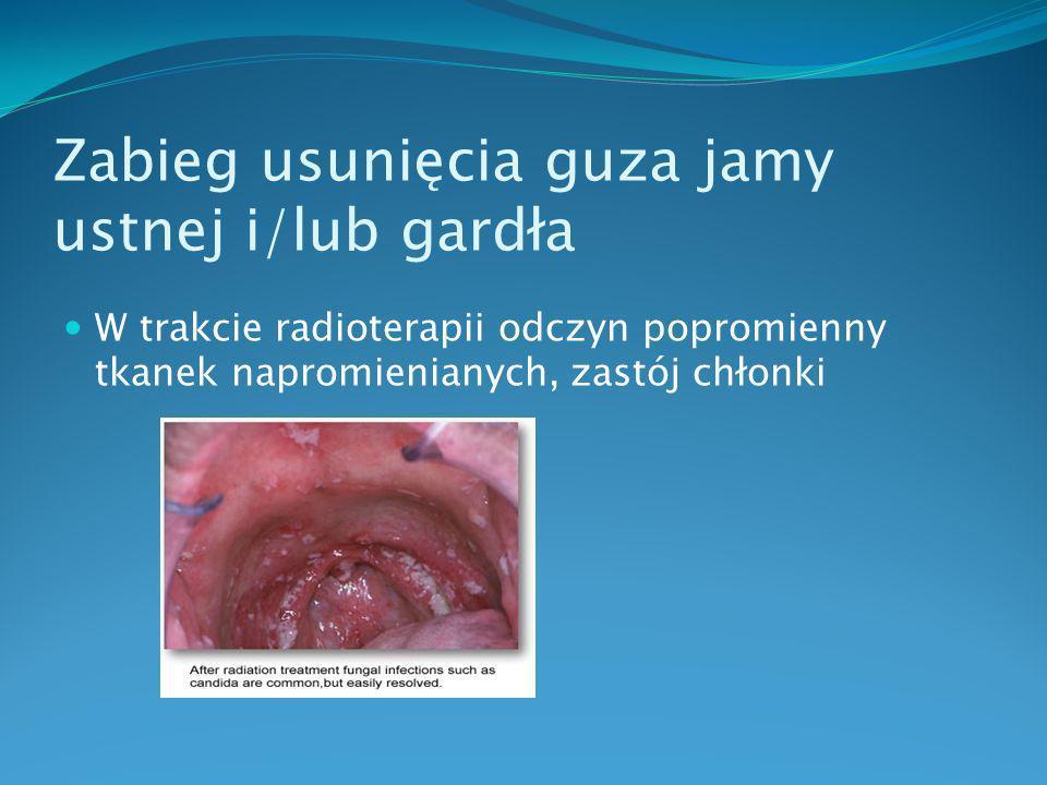 Zabieg usunięcia guza jamy ustnej i/lub gardła