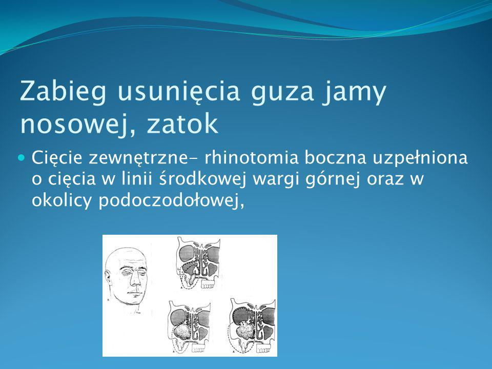 Zabieg usunięcia guza jamy nosowej, zatok