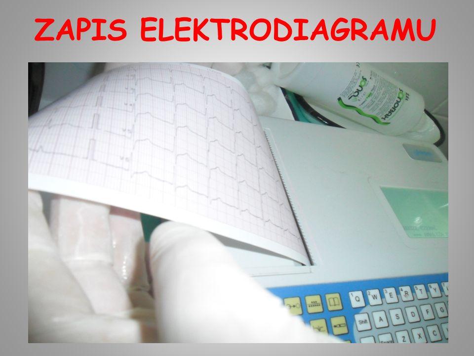 ZAPIS ELEKTRODIAGRAMU