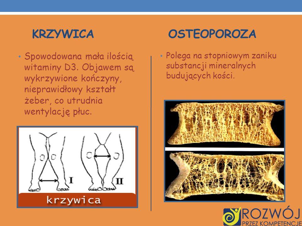 krzywica osteoporoza