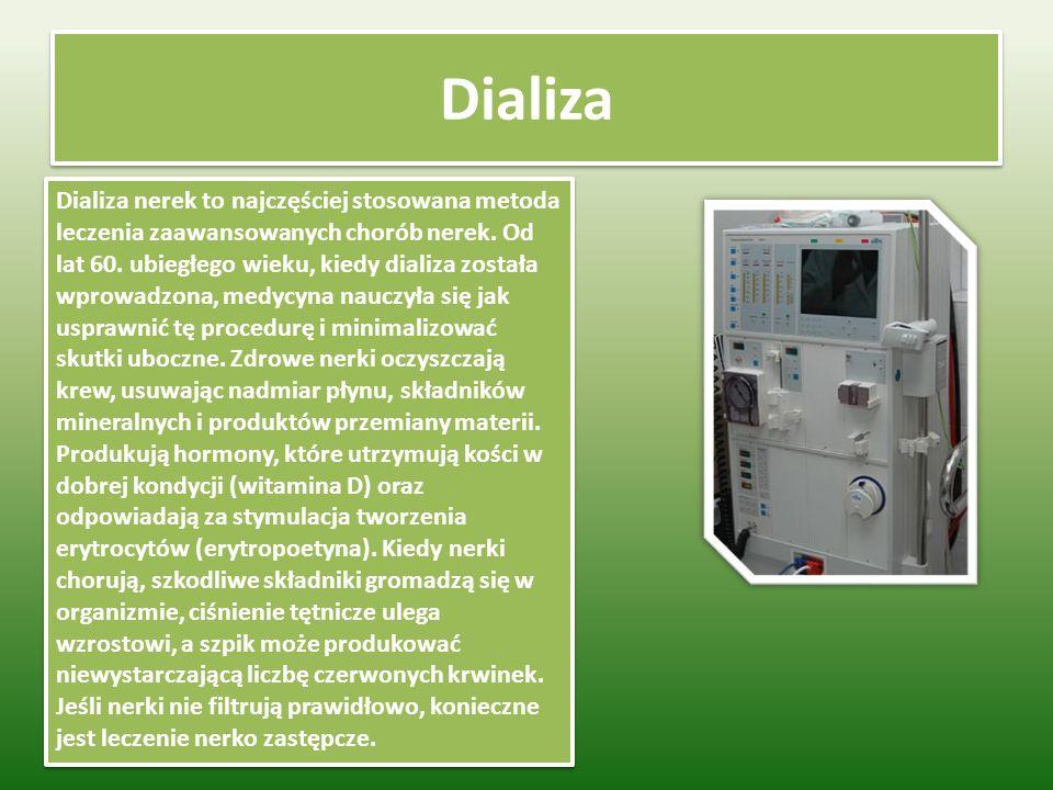 Dializa