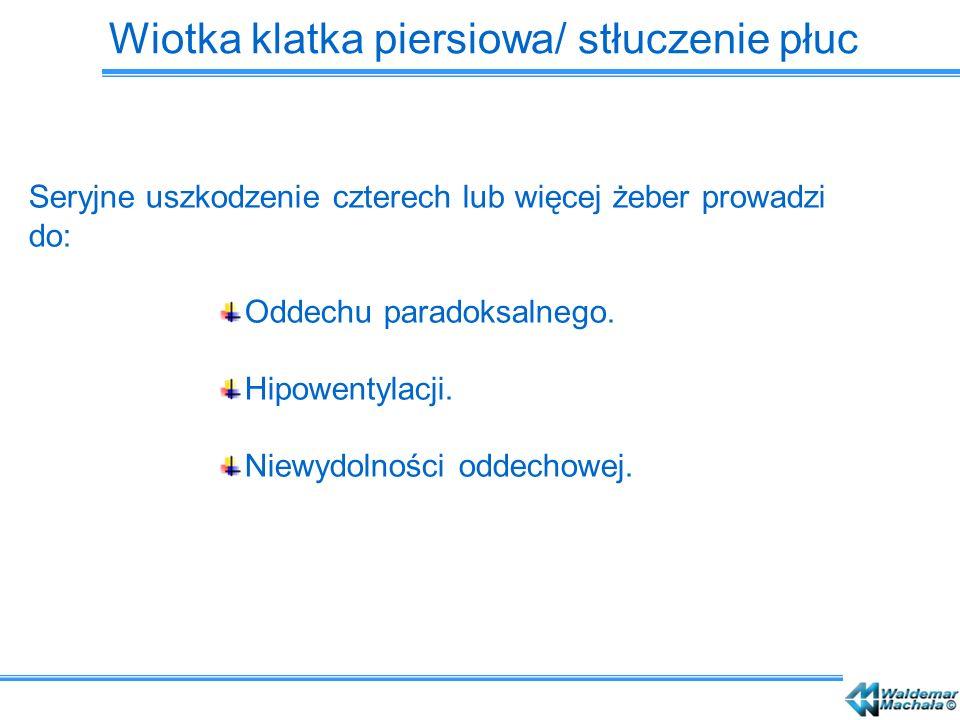 Wiotka klatka piersiowa/ stłuczenie płuc