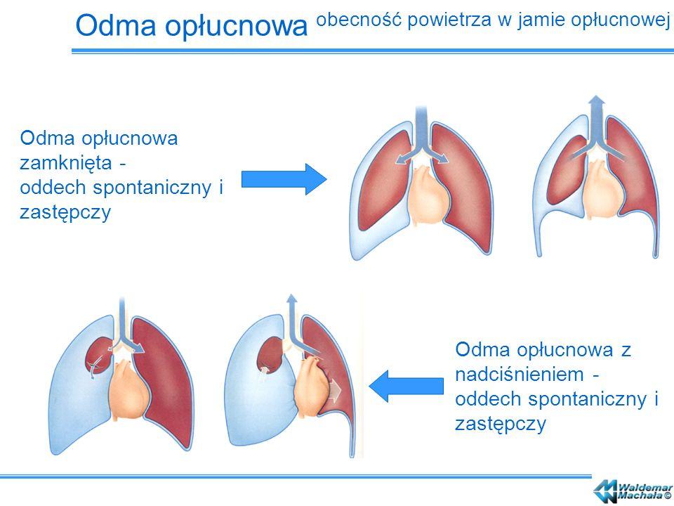 Odma opłucnowa obecność powietrza w jamie opłucnowej