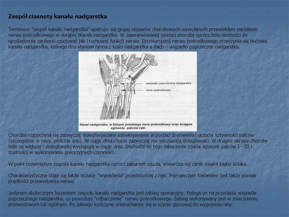 Zespół ciasnoty kanału nadgarstka