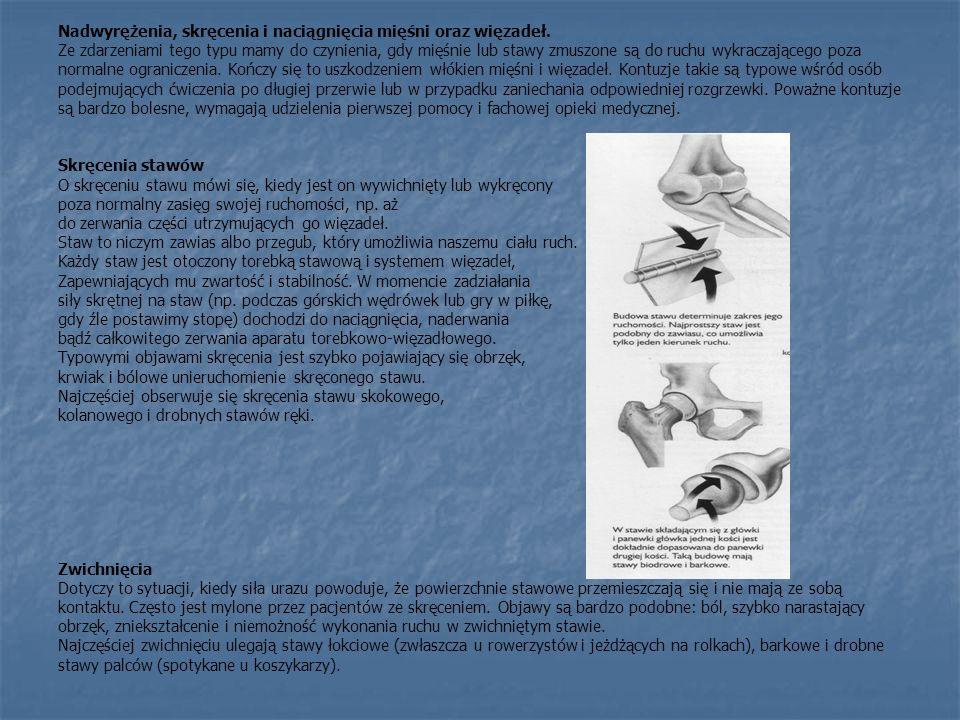 Nadwyrężenia, skręcenia i naciągnięcia mięśni oraz więzadeł.