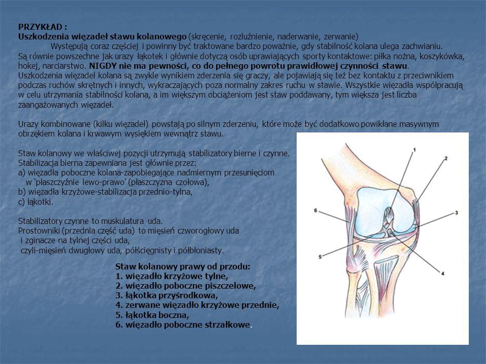PRZYKŁAD : Uszkodzenia więzadeł stawu kolanowego (skręcenie, rozluźnienie, naderwanie, zerwanie)