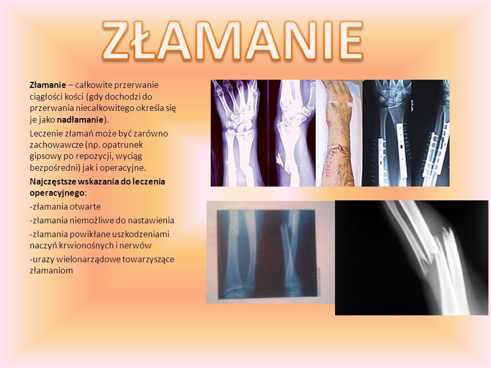 ZŁAMANIE Złamanie – całkowite przerwanie ciągłości kości (gdy dochodzi do przerwania niecałkowitego określa się je jako nadłamanie).
