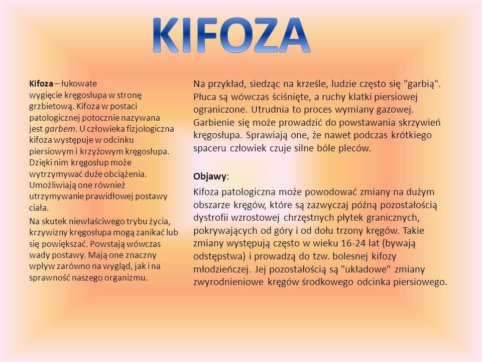 KIFOZA