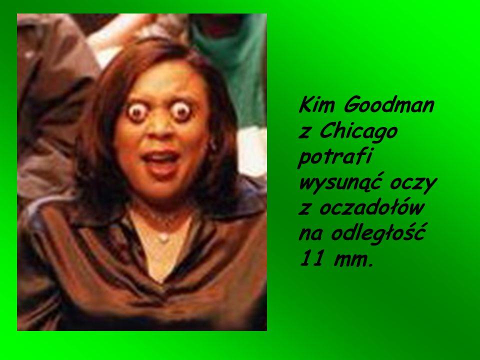 Kim Goodman z Chicago potrafi wysunąć oczy z oczadołów na odległość 11 mm.