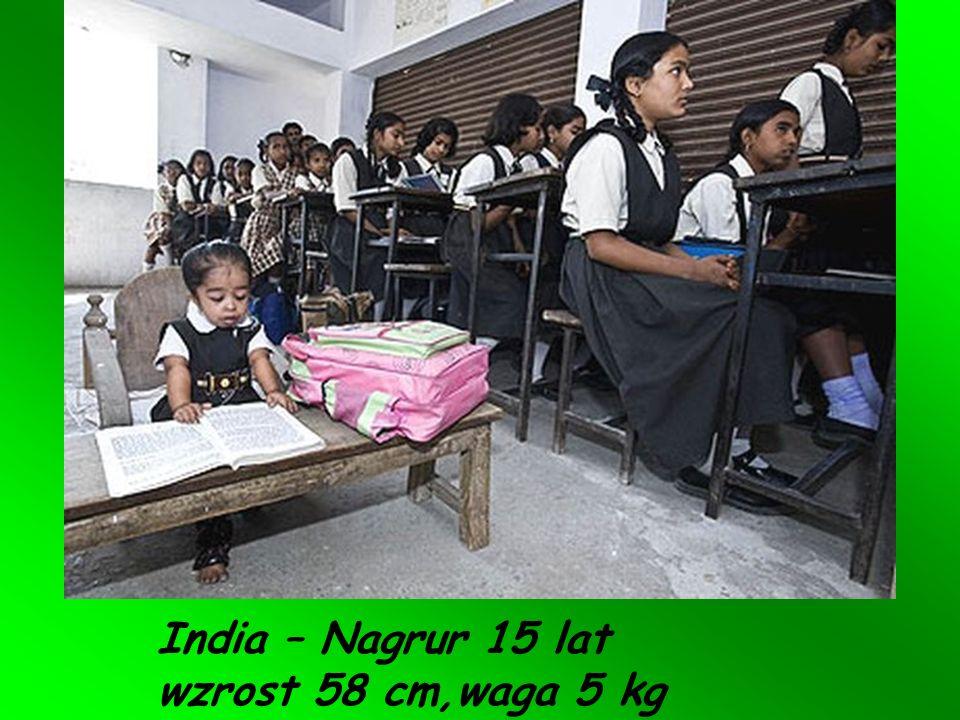 India – Nagrur 15 lat wzrost 58 cm,waga 5 kg