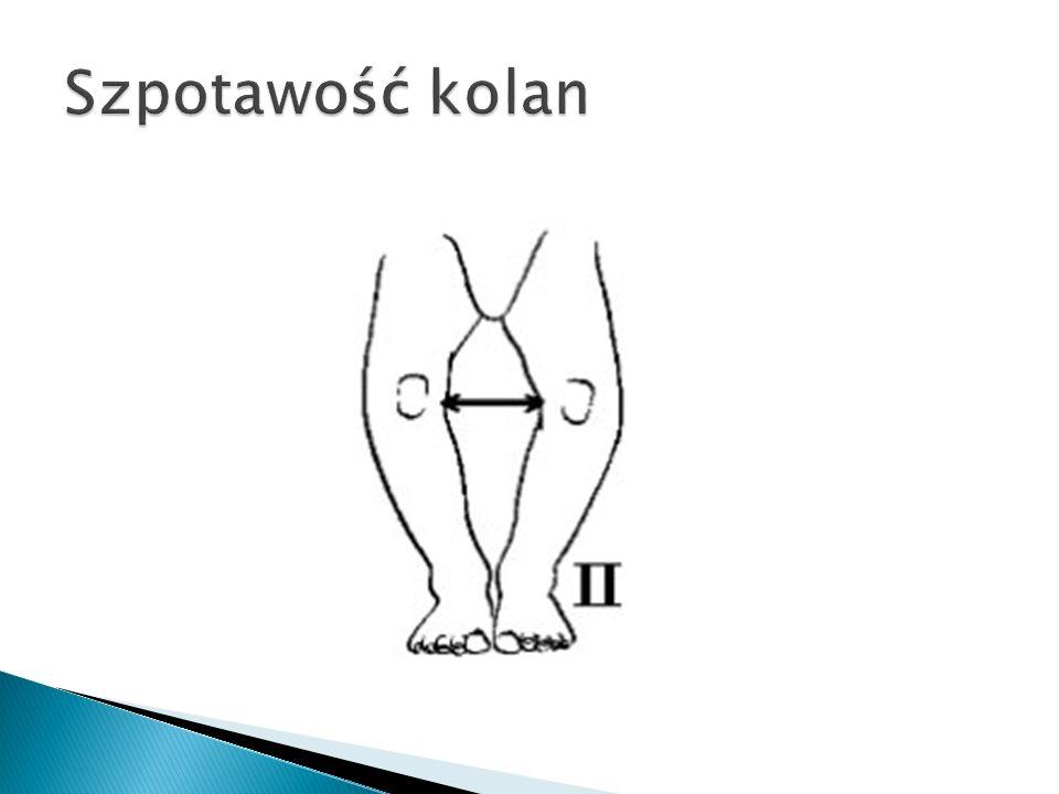 Szpotawość kolan