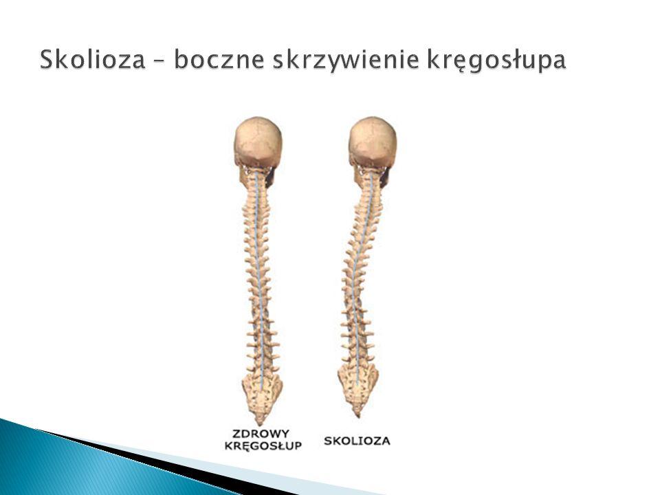 Skolioza – boczne skrzywienie kręgosłupa