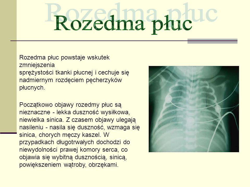 Rozedma płuc Rozedma płuc powstaje wskutek zmniejszenia