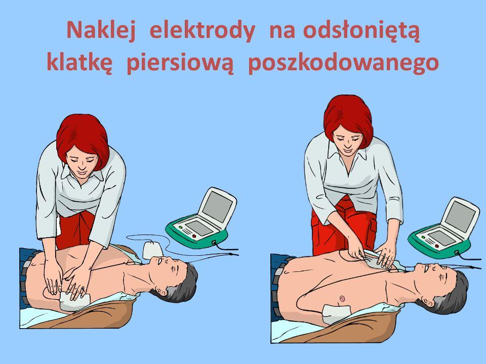 Naklej elektrody na odsłoniętą klatkę piersiową poszkodowanego