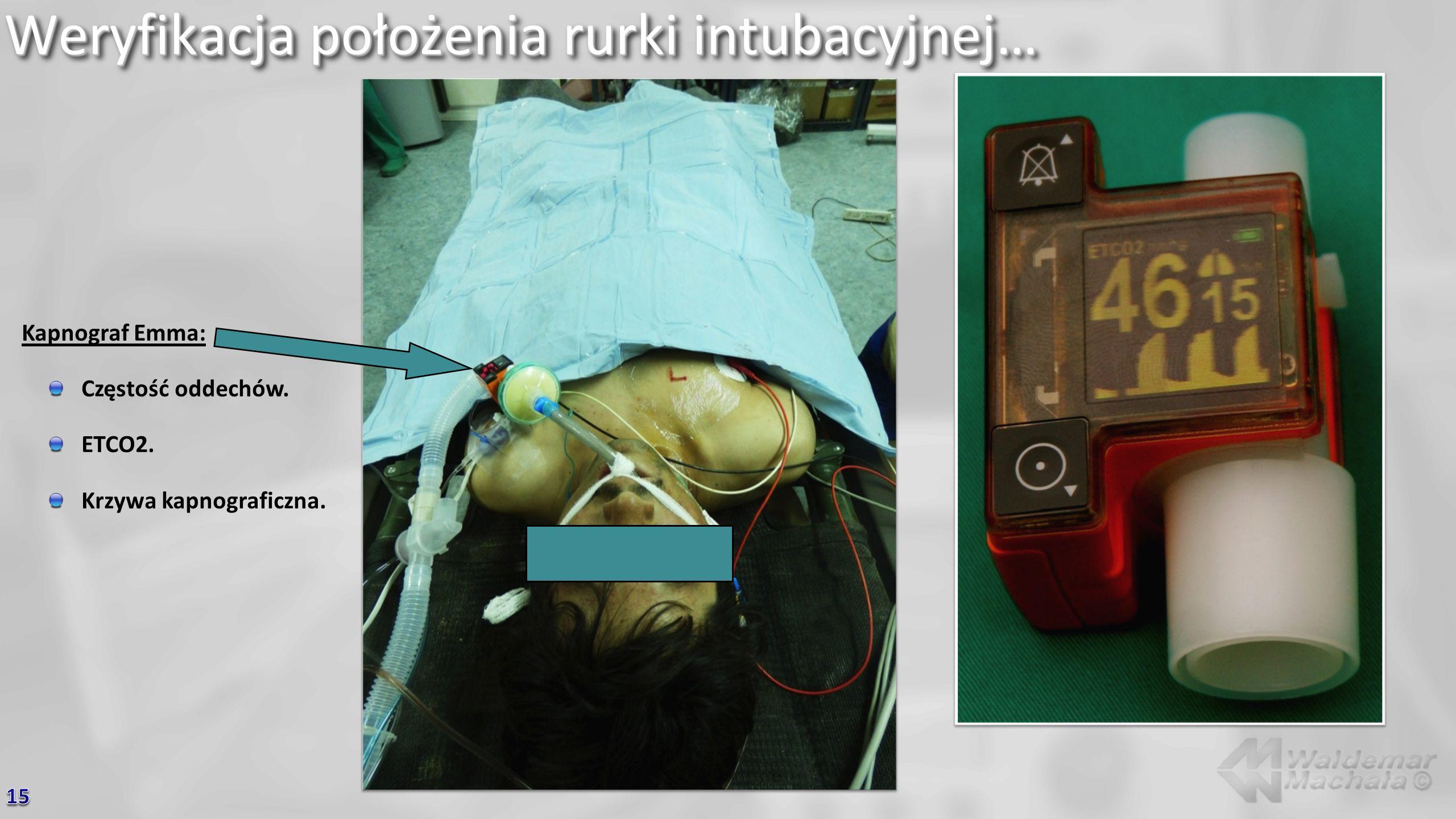Weryfikacja położenia rurki intubacyjnej…