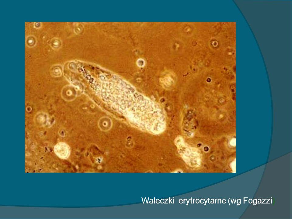 Wałeczki erytrocytarne (wg Fogazzi)