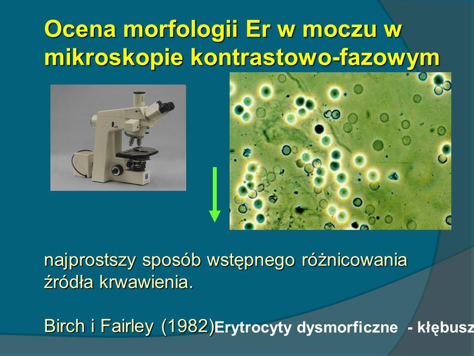 Ocena morfologii Er w moczu w mikroskopie kontrastowo-fazowym najprostszy sposób wstępnego różnicowania źródła krwawienia. Birch i Fairley (1982)