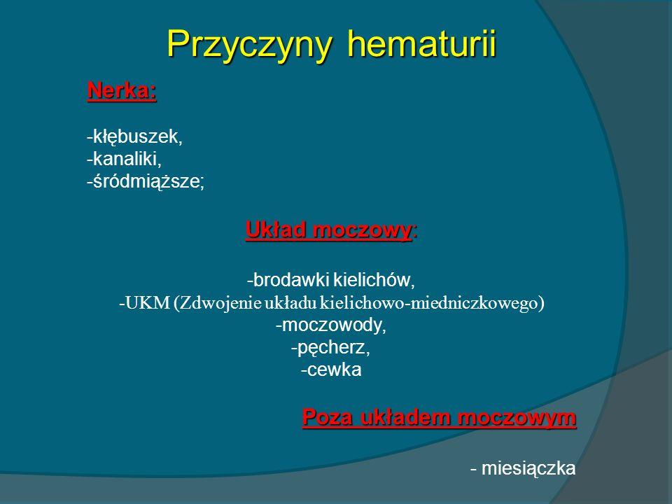 -UKM (Zdwojenie układu kielichowo-miedniczkowego)