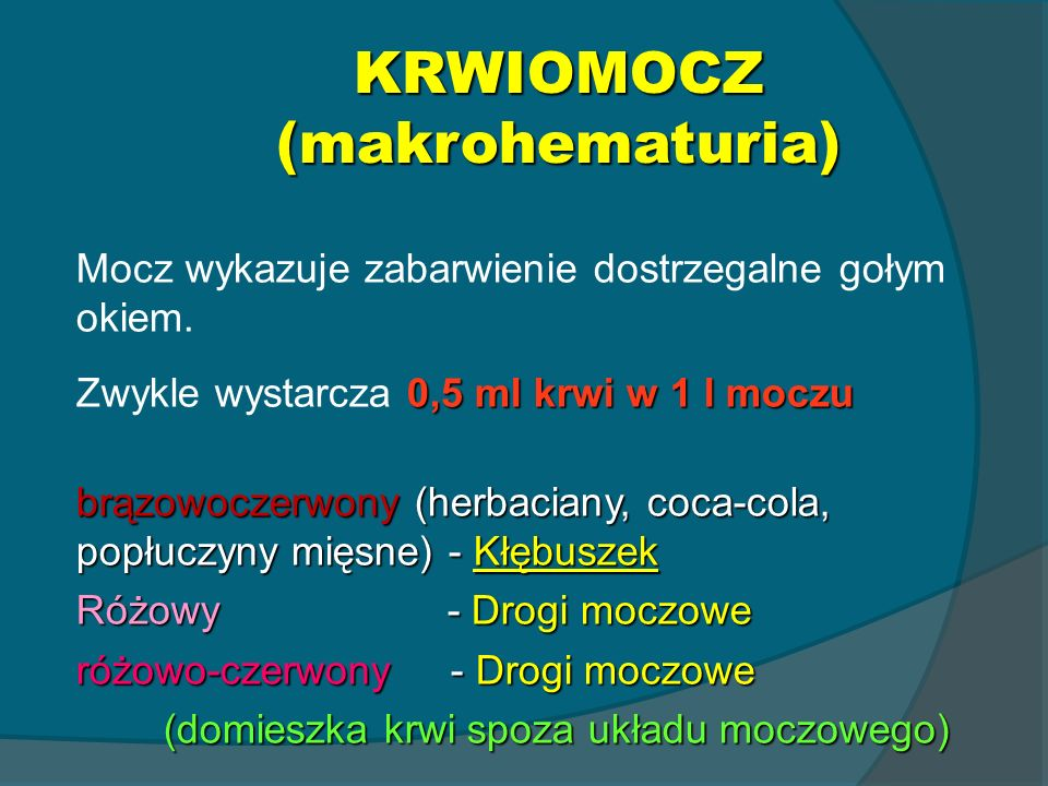 KRWIOMOCZ (makrohematuria)