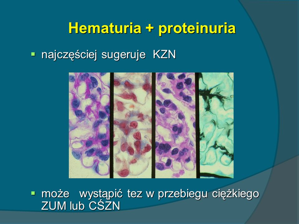 Hematuria + proteinuria