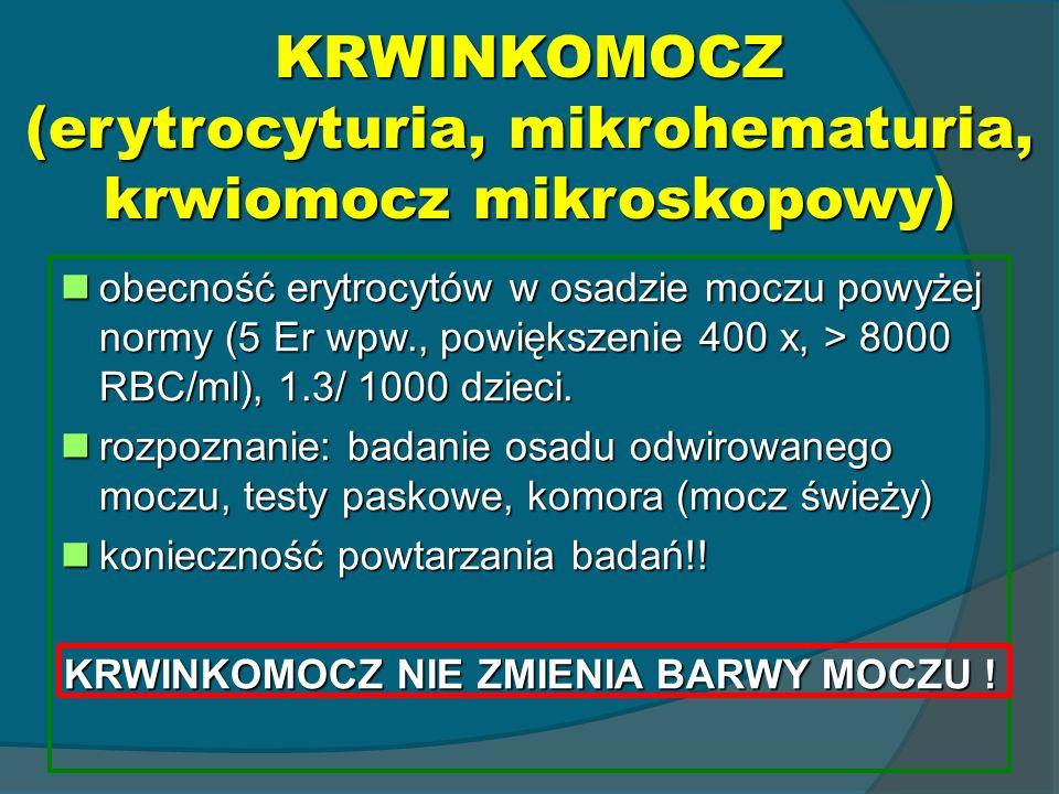 KRWINKOMOCZ (erytrocyturia, mikrohematuria, krwiomocz mikroskopowy)