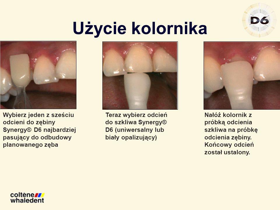 Użycie kolornika Wybierz jeden z sześciu odcieni do zębiny Synergy® D6 najbardziej pasujący do odbudowy planowanego zęba.