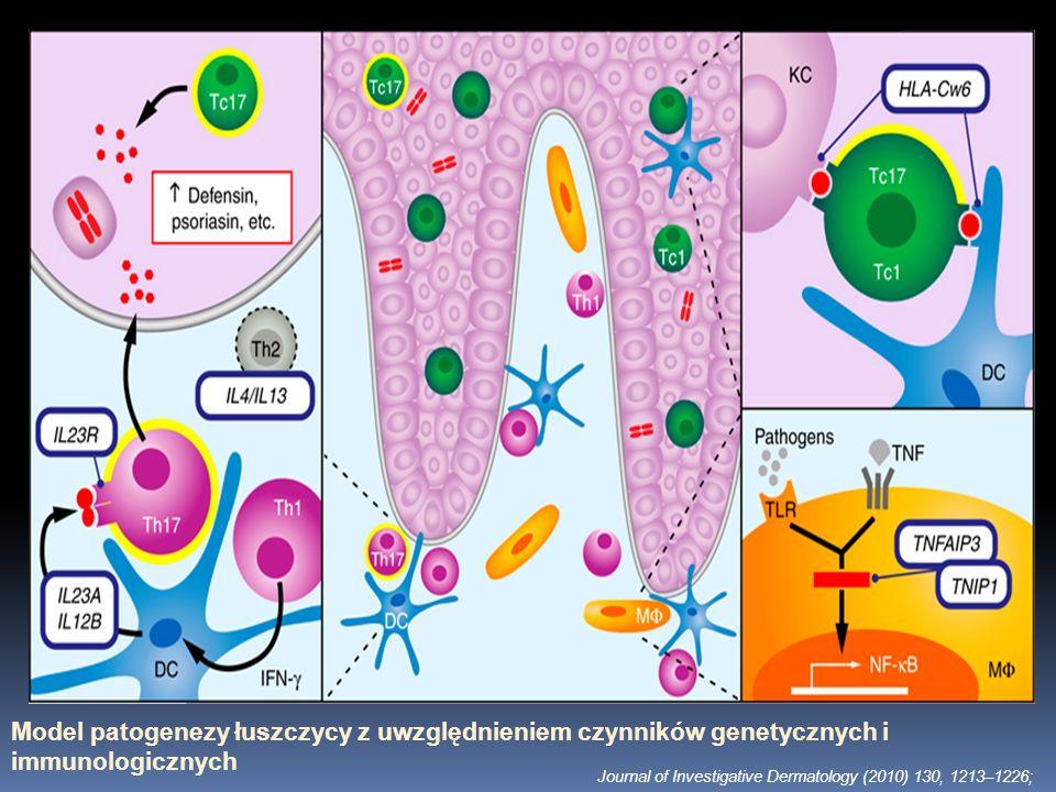 Model patogenezy łuszczycy z uwzględnieniem czynników genetycznych i immunologicznych