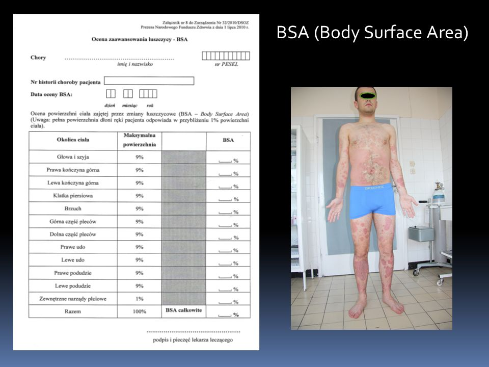 BSA (Body Surface Area)
