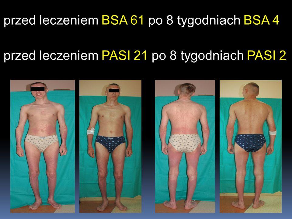 przed leczeniem BSA 61 po 8 tygodniach BSA 4