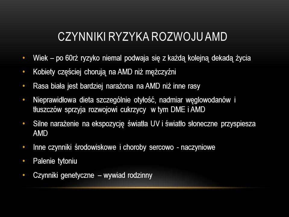 CZYNNIKI RYZYKA ROZWOJU AMD