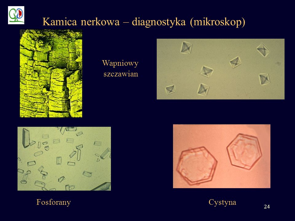 Kamica nerkowa – diagnostyka (mikroskop)