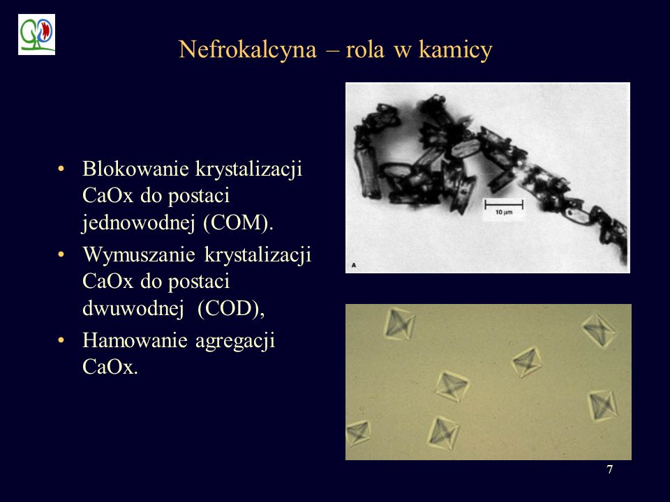 Nefrokalcyna – rola w kamicy