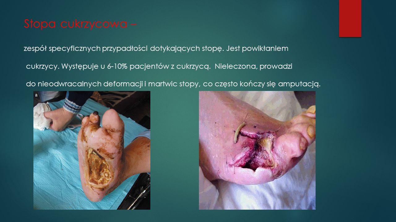 Stopa cukrzycowa – zespół specyficznych przypadłości dotykających stopę.
