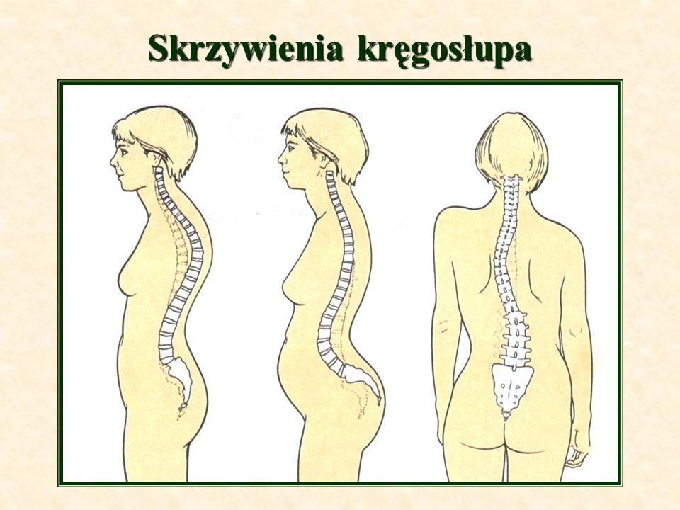 Skrzywienia kręgosłupa