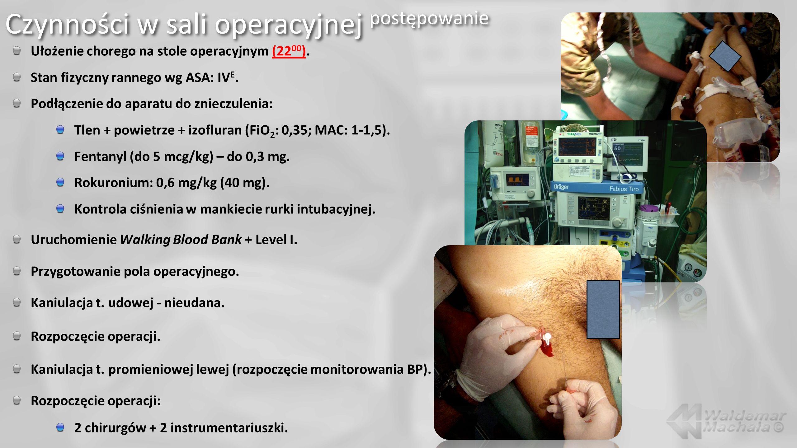 Czynności w sali operacyjnej postępowanie