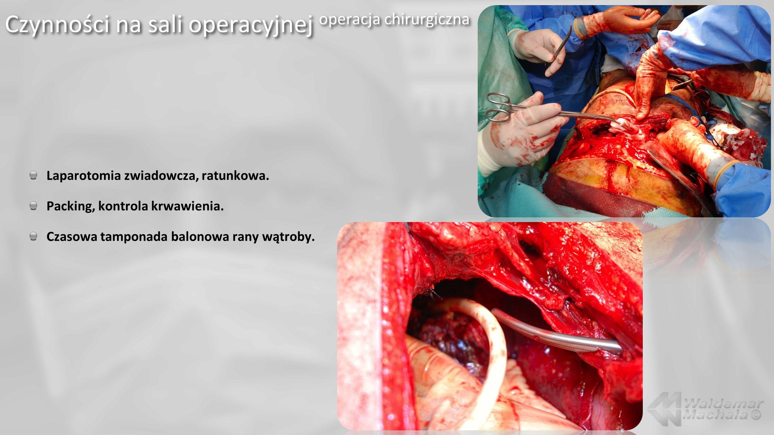 Czynności na sali operacyjnej operacja chirurgiczna